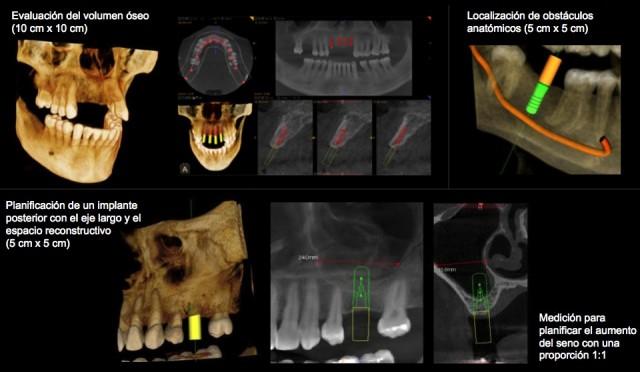 carestream c9300. centro radiologico 3D. ejemplos de tratamientos.002