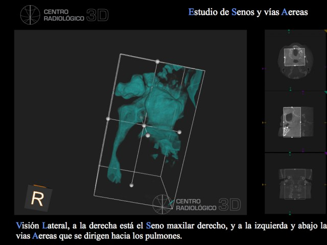 videos centro raiologico. Carestream. examen vias aereas.004